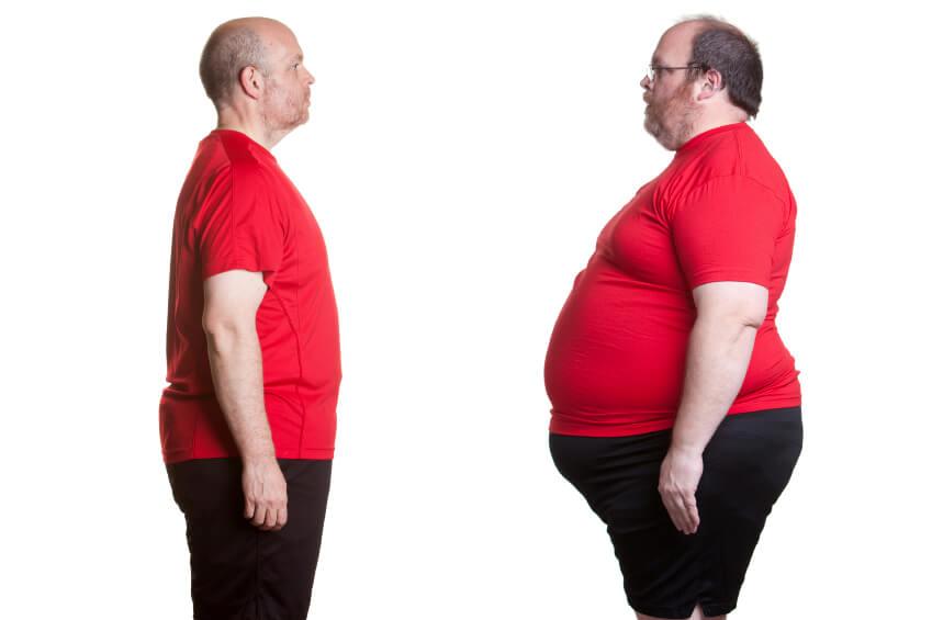 supp-11 Obezite Nedir ve Obezitenin Nedenleri Nelerdir?