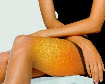 cellulite2 Selülite İyi Gelen Besinler Nelerdir ve Selülit Diyeti Nasıl Yapılır?
