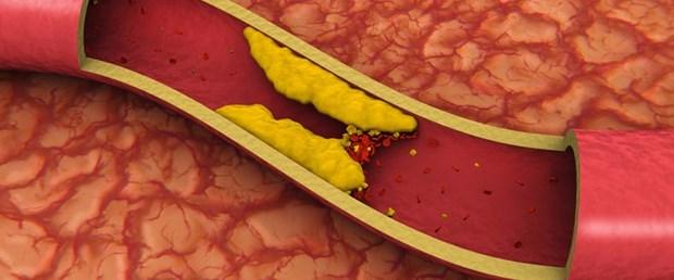 NpS4P-rw8UyNOXc5c5T15w Kolesterol Hastaları İçin Beslenme ve Diyet Önerileri