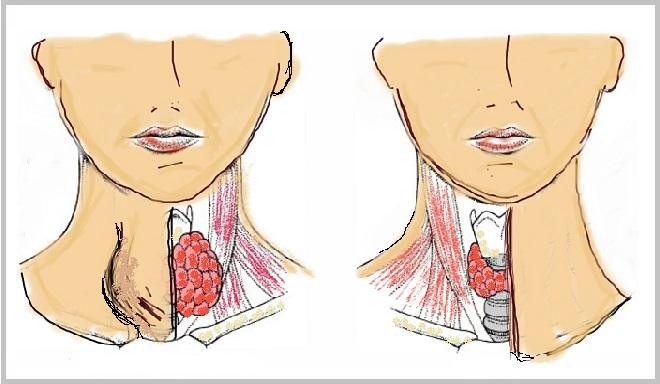 hipotiroidi-tiroid-tiroit-hastaligi-tedavisi Tiroid Hastaları İçin Beslenme Önerileri