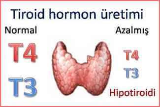 hipotiroidi Tiroid Hastaları İçin Beslenme Önerileri