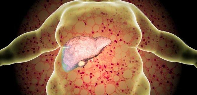 60804 Karaciğer Yağlanması Belirtileri, Tedavisi ve Diyeti
