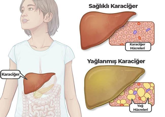 karaciger-yaglanmasi-saglikli-karaciger Karaciğer Yağlanması Belirtileri, Tedavisi ve Diyeti